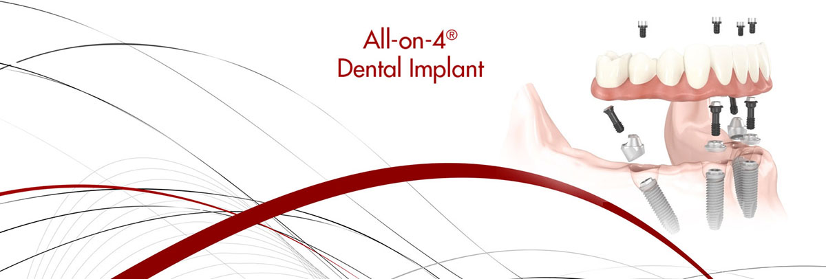 Mission Viejo All-on-4 Dental Implants