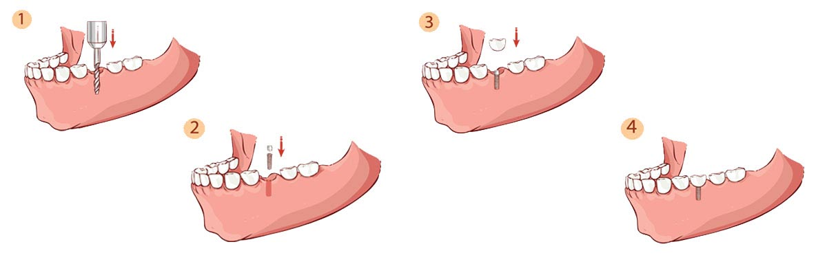 Mission Viejo The Dental Implant Procedure