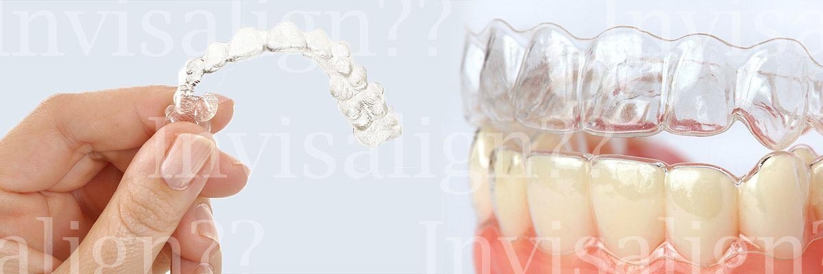 Mission Viejo Does Invisalign® Really Work?