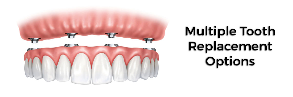 Mission Viejo Multiple Teeth Replacement Options