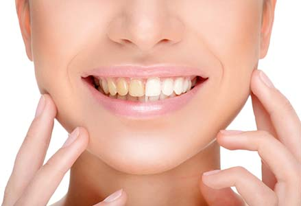 Teeth Whitening And Sensitive Teeth Tips From The American Dental