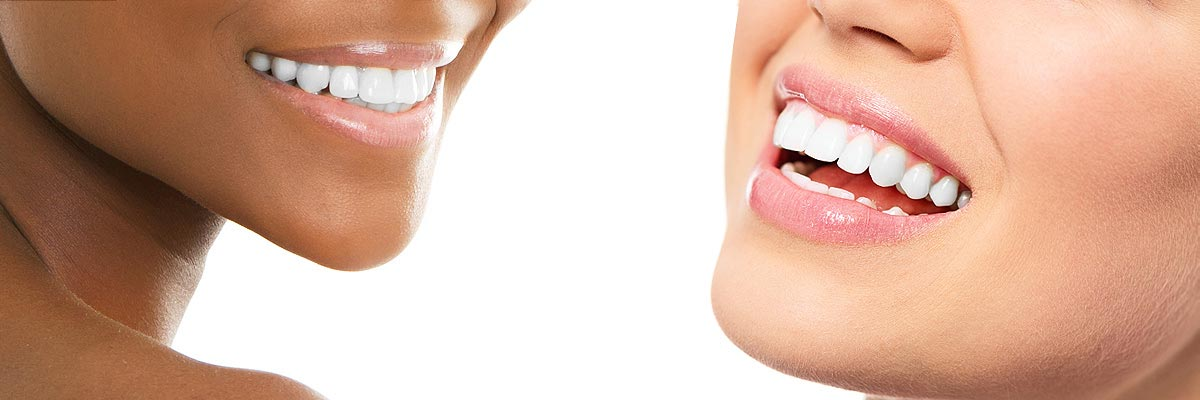Mission Viejo Teeth Whitening